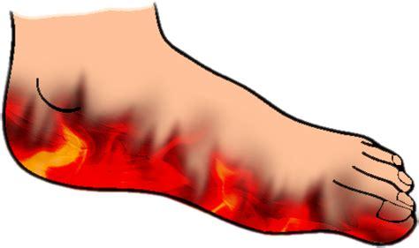 Pijnlijke voetzolen