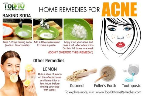 best treatment for pimples home remedies for acne top 10 home remedies
