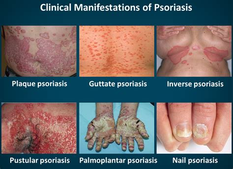 Mild to moderate plaque psoriasis