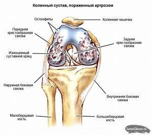 Мазь с гиалуроновой кислотой для коленного сустава