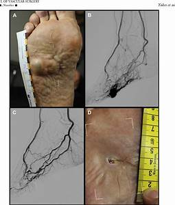 Figure 2 From Percutaneous Embolization Of Arteriovenous