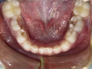 Clinical Cases - PDG Dental | Pediatric Dentistry ...