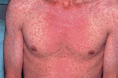 Measles Images Measles الحصبة