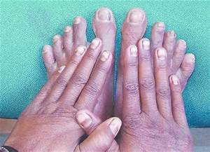 Hyperpigmentation Involving All The Nails Of Fingers And