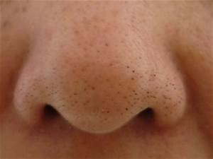 » Clogged Pores – Nose, Chin, Face, Home Remedies ...