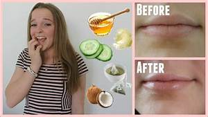 Easy Ways To Cure Chapped Lips In Minutes Youtube