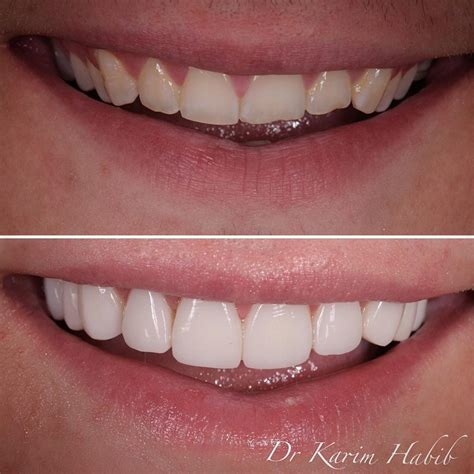 composite veneers sydney dental bonding sydney dentist