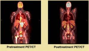 pet scan vs cat scan pet scans when and how journal