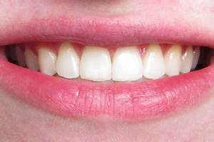 Say Braces!: Before and After Braces—Braces Off, Underbite ...