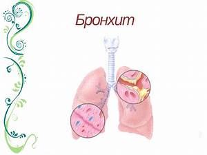 Папиллома у детей лечение фото