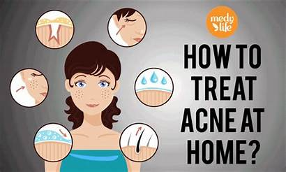 Acne Types Causes Treatment Remedies Treat Beauty
