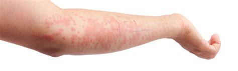 Erytheem (erythema, rode huidvlekken) Gezondheidsnet
