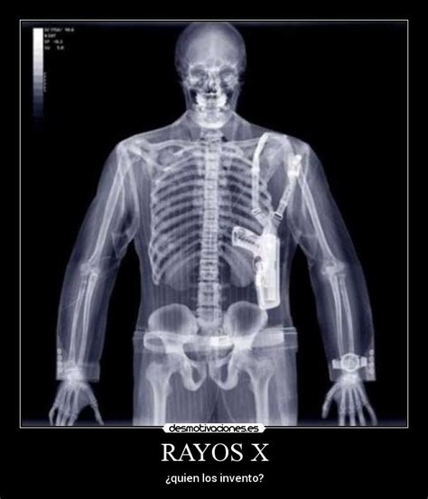 fotos de rayos x radiografias rayos x sobrehistoria