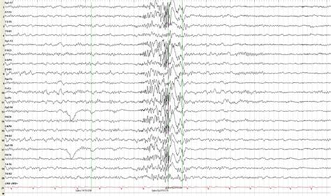 do led lights cause epileptic seizures 1000 ideas about myoclonic epilepsy on pinterest