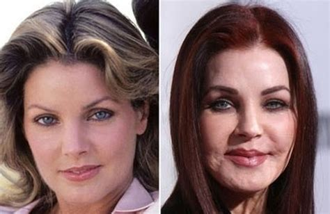 Celebrity Plastic Surgery Gone Wrong. Avaya Call Management System. Rockland Physical Therapy Att Uverse Helpline. College Nursing Courses It Technology Updates. Colleges For Baking And Pastry. St Joseph Rehabilitation Center. Stevens Institute Of Technology Tuition. Family Law Virginia Beach Summer Dinner Ideas. Types Of Computer Science Degrees
