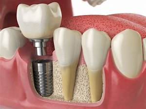 The Ultimate Guide To Caring For Your Dental Implants
