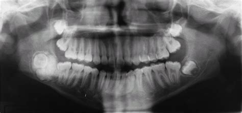 april  uw school  dentistry