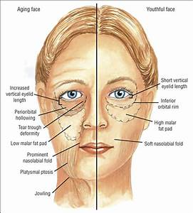Evolution of Midface Rejuvenation | JAMA Facial Plastic ...
