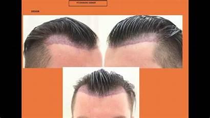 Geheimratsecken Mit Dr Fue Undercut Hairstyle Hairstyles
