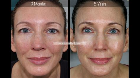 5-Year Retin-A Results ~ Before & After for Wrinkles