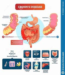 Crohns Disease Vector Illustration  Labeled Diagram With Diagnosis  Stock Vector