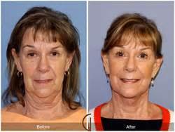 todays  cosmetic surgery review site realselfcom