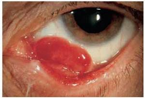 Vascular Tumors and Related Lesions of the Conjunctiva ...