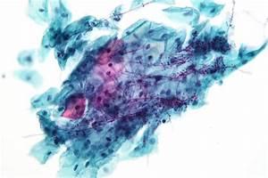 Pap Corse : pathogenicity and other microbes boundless microbiology ~ Gottalentnigeria.com Avis de Voitures