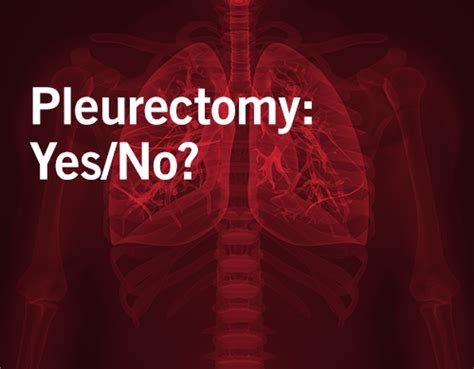 Asbestos Lawyers Los Angeles by Pleurectomy Yields Better Quality Of For Mesothelioma