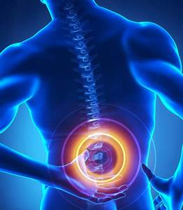 Patients At Risk For Biomet Spinal Fusion Stimulator Side Effects