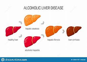 Liver Cirrhosis Without Alcohol