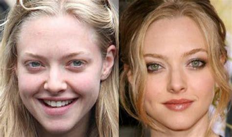 amanda seyfried nose job plastic surgery    celebie