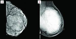 Mammography Findings Are Suggestive Of Breast Cancer With