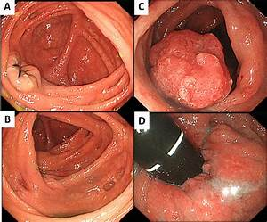 Initial Endoscopic Findings  Colonoscopy Showed Mild