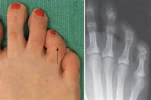 Foot and Toe Deformities