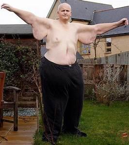 Le Plus Gros Moteur Du Monde : l 39 homme le plus gros du monde a perdu pr s de 300 kilos ~ Medecine-chirurgie-esthetiques.com Avis de Voitures