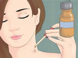 Папилломы на шее лечение таблетки