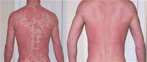 Palmoplantar, pustular, psoriasis, What You Should Know About