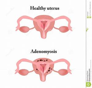 Endometriosis  The Structure Of The Pelvic Organs