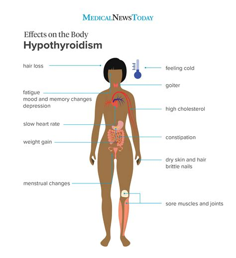 hypothyroidism symptoms  signs