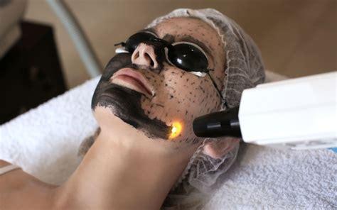 carbon laser facial skin treatment acne treatment st
