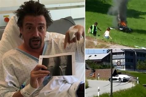 Bruised And Battered Richard Hammond Shares First Picture