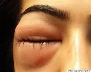 Woman Left With Severely Swollen Eye After Blowing Her Nose  U0026 39 Too Hard U0026 39