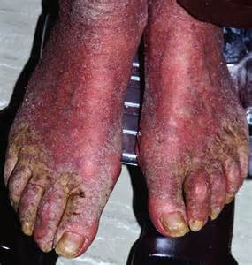 Pictures of Crusted Scabies On Skin