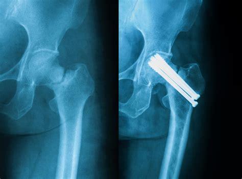 psoriatic arthritis  psoriasis increase risk