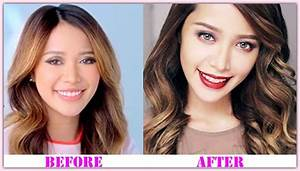Michelle Phan Plastic Surgery – A Nose Job Done Well