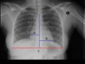 Cardiomegalia  S U00edntomas  Clasificaci U00f3n  Causas Y