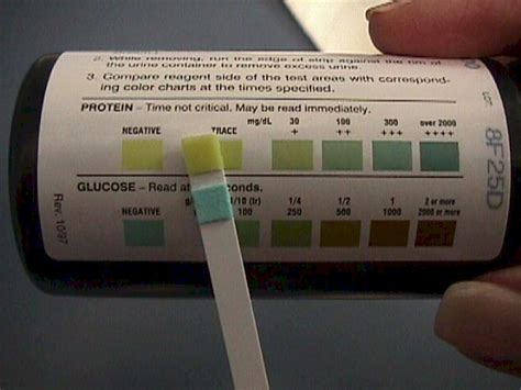 early pregnancy urine color symptoms of pregnancy urine color