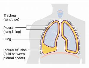 File Diagram Showing A Build Up Of Fluid In The Lining Of The Lungs  Pleural Effusion  Cruk 054