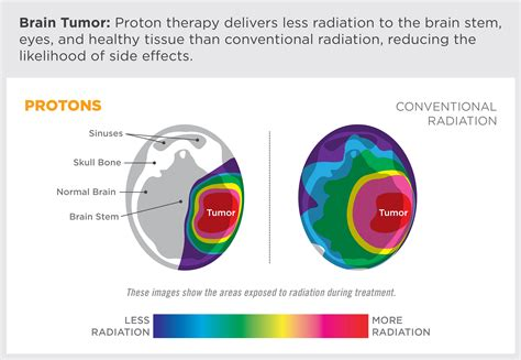 Proton Cancer by Advantages Of Proton Therapy Provision Cares Proton Therapy